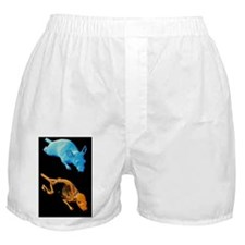 Coloured 3-D CT scans of an obese lab Boxer Shorts