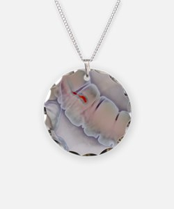 Colonic polyp X-ray Necklace