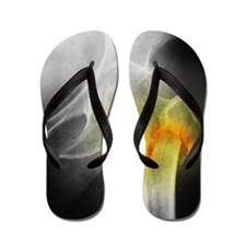 Coloured X-ray of femur fracture in ost Flip Flops