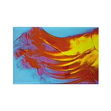 Coloured X-ray of rheumatoid arth Rectangle Magnet