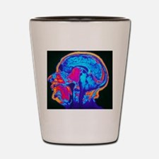 Coloured MRI brain scan of a pituitary  Shot Glass
