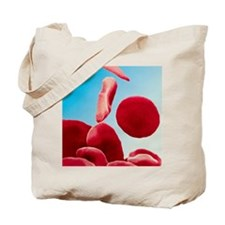 Coloured SEM of blood in sickle cell anae Tote Bag