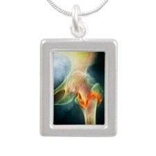 Coloured X-ray of femur  Silver Portrait Necklace