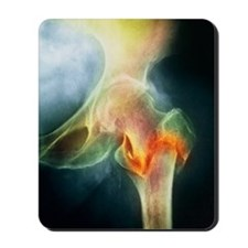 Coloured X-ray of femur fracture in oste Mousepad