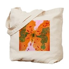 Coloured TEM of a cancer cell dividing by Tote Bag