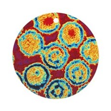 Coloured TEM of Epstein-Barr viruse Round Ornament