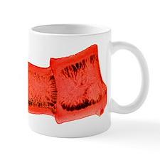 Pork tapeworm, light micrograph Mug