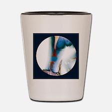 Corrected knee dislocation, X-ray Shot Glass