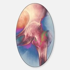 Coloured X-ray of femur fracture in Sticker (Oval)
