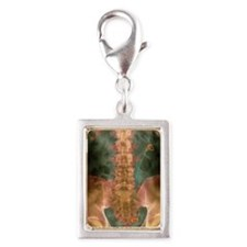 Coloured X-ray of a stent in Silver Portrait Charm