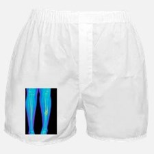 Coloured X-ray of fractured shin bone Boxer Shorts