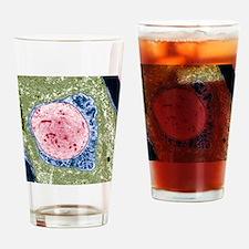 Demyelinated nerve, TEM Drinking Glass