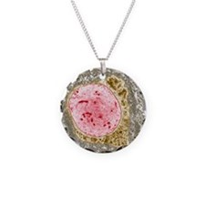 Demyelinated nerve, TEM Necklace Circle Charm