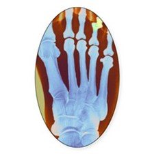 Dislocated toe, X-ray Decal