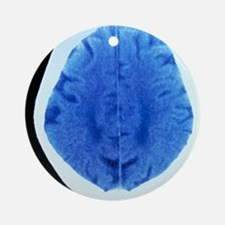 CT brain scan of dementia Round Ornament