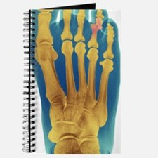Dislocated toe, X-ray Journal