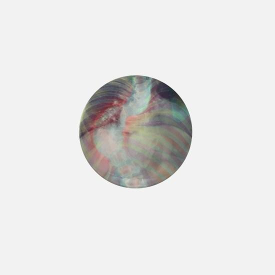 Deformed spine in scoliosis, coloured  Mini Button