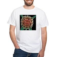 Radiolarian planktonic protozoan, Shirt