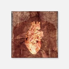 "Diseased heart Square Sticker 3"" x 3"""