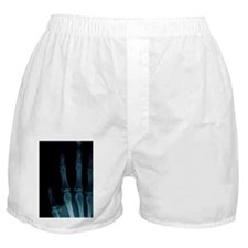 X-Ray of Hand. Boxer Shorts