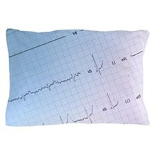 Close up of ekg printout Pillow Case