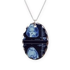 Multiple MRI scans of knee joi Necklace Oval Charm