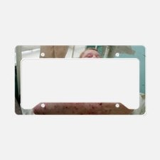 Eczema skin condition License Plate Holder