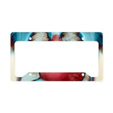 Enlarged heart, X-ray License Plate Holder