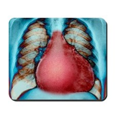 Enlarged heart, X-ray Mousepad