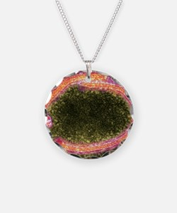 Ebola virus particles, TEM Necklace