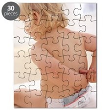 Eczema on a baby's back Puzzle
