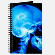 Security chip in a human skull Journal