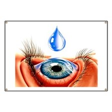Eye with conjunctivitis Banner
