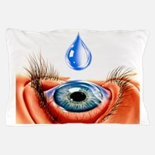 Eye with conjunctivitis Pillow Case