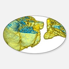 Emphysema of the lungs, CT scan Decal