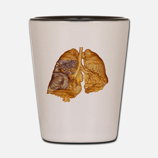 Emphysema of the lungs, CT scan Shot Glass
