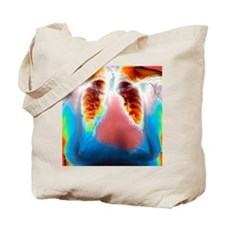 Enlarged heart, X-ray Tote Bag