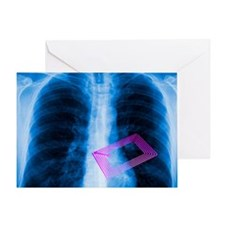 Security chip in a human chest Greeting Card