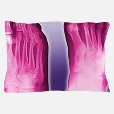 Fractured foot, coloured X-ray Pillow Case