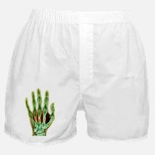 Fractured palm bones of hand, X-ray Boxer Shorts