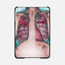 Fibrosis of the lung, X-ray iPad Mini Case