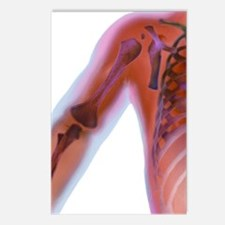 Fractured shoulder, X-ray Postcards (Package of 8)