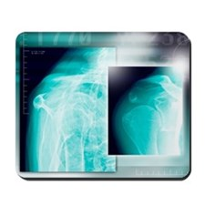 Fractured shoulder, X-rays Mousepad