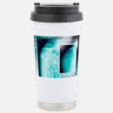 Fractured shoulder, X-rays Travel Mug