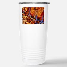 Artwork of human skin showing M Travel Mug