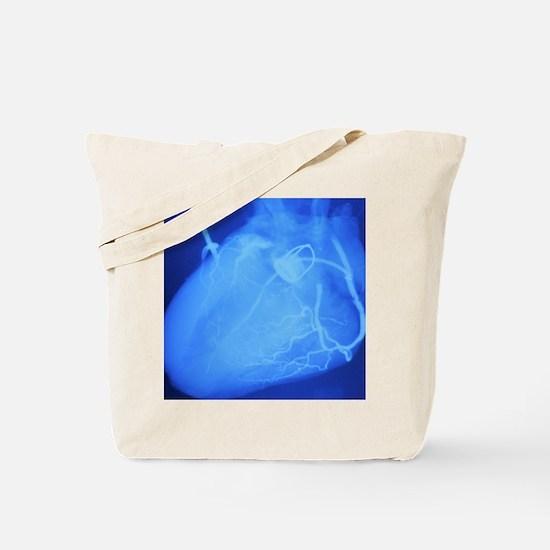 Artificial heart valve Tote Bag