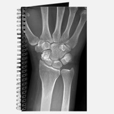 Fractured wrist, X-ray Journal