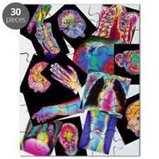 Assortment of coloured X-rays and body scan Puzzle