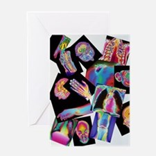 Assortment of coloured X-rays and bo Greeting Card