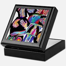 Assortment of coloured X-rays and bod Keepsake Box
